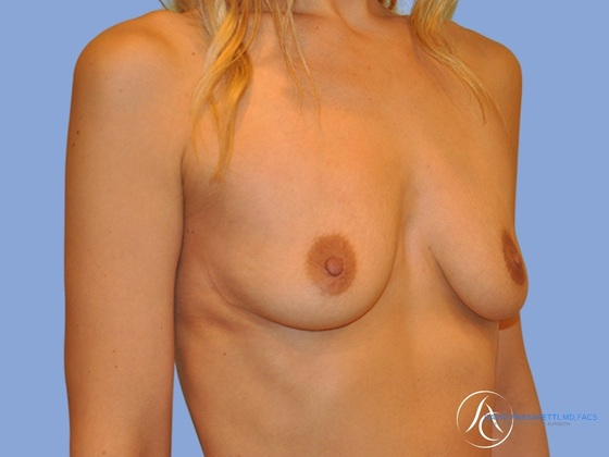 /gallery/breast/breast augmentation/ Before & After Image