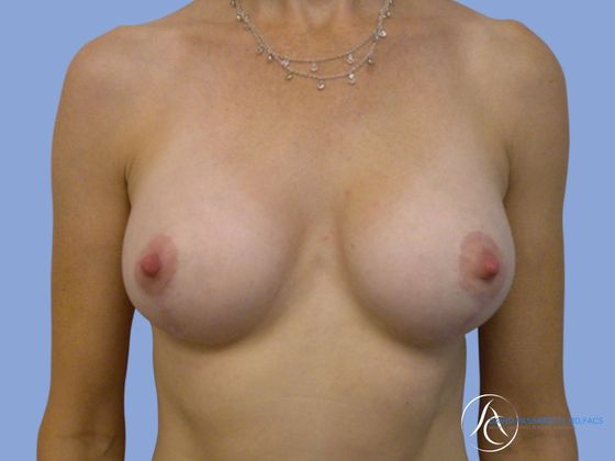 /gallery/breast/breast implant revision/ Before & After Image