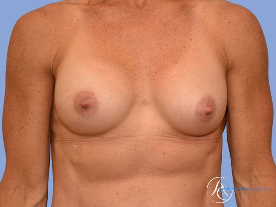/gallery/breast/en bloc implant removal/ Before & After Image