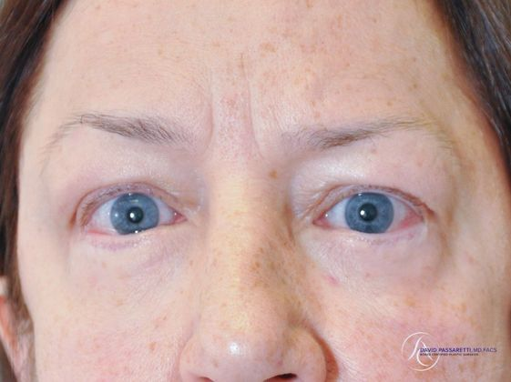 /gallery/face/eyelid surgery/ Before & After Image