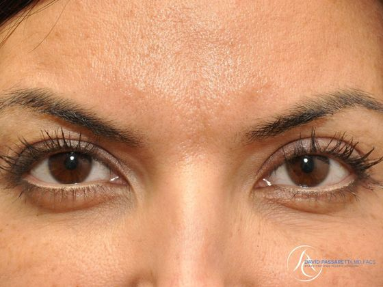 Eyelid surgery Before & After photo