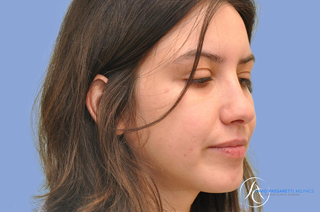 /gallery/face/rhinoplasty/ Before & After Image